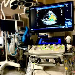 超音波診断装置<br>ALOLA α6
